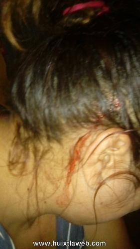 Cantinero le abrió la cabeza de una pedrada a Tuzanteca