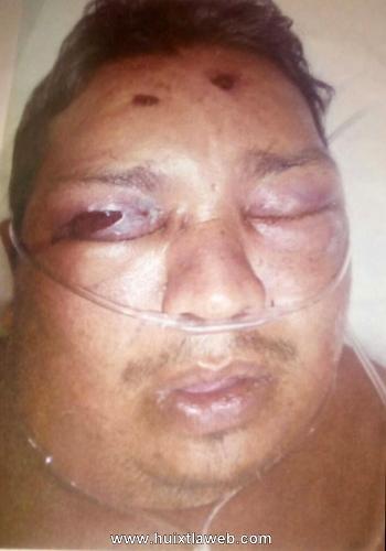 Demandan a funcionarios por muerte de Huehueteco