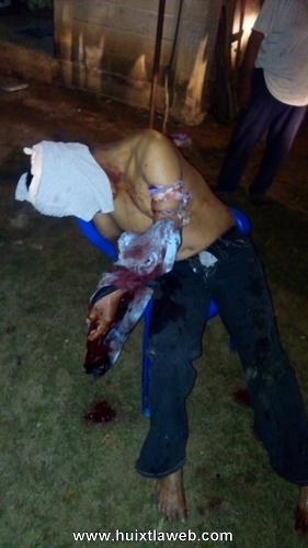 Campesino es macheteado por supuesto demente en zona cañera