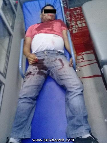 Asesinan de un balazo en la cabeza a maestro en Acacoyagua