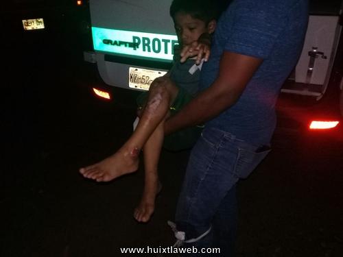 Niño de cinco años se lesiona al caer de Motocicleta