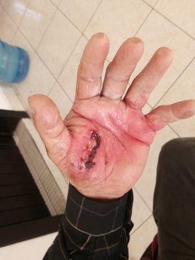 Huixtleco es atacado por un perro en la calle
