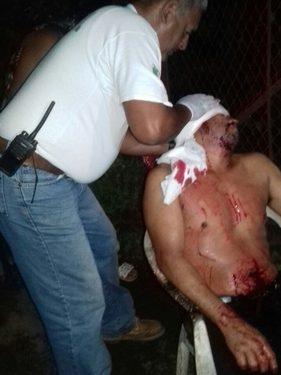 Huixtleco se accidenta con su motocicleta
