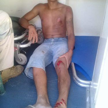 Motociclista se lesiona al ser atropellado por un vehículo