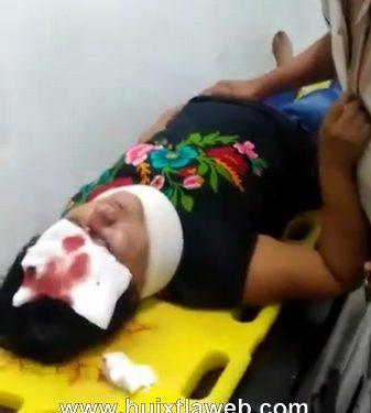 Grave dama Huixtleca atropellada