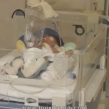 Se recupera niño que nació con intestinos de fuera en Huixtla