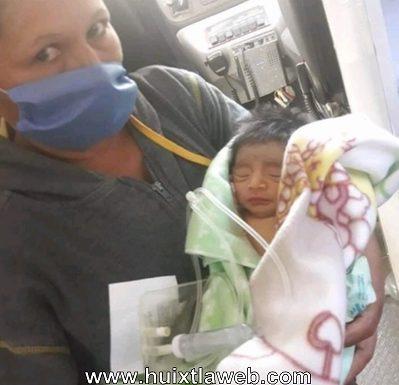 Piden apoyo para bebé que nació con intestino de fuera en Huixtla