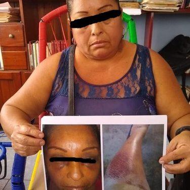 Comaltitleca es brutalmente golpeada por funcionarios del ayuntamiento