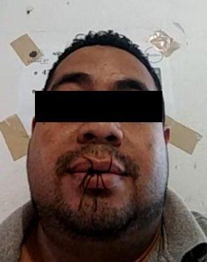 En huelga interno de CERSS 7 se cose los labios