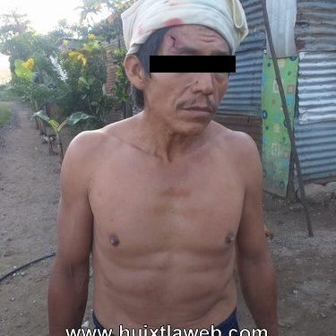 Huixtleco fue macheteado por sujetos en motocicleta