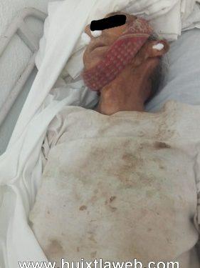 Abuelito muere al caer en pozo en escuintla