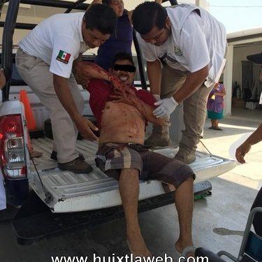 En asalto balean a comerciante en Acacoyagua